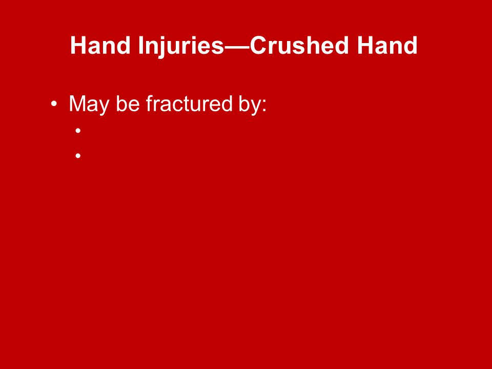 Hand Injuries—Crushed Hand May be fractured by: