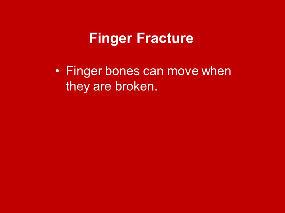 Finger Fracture Finger bones can move when they are broken.
