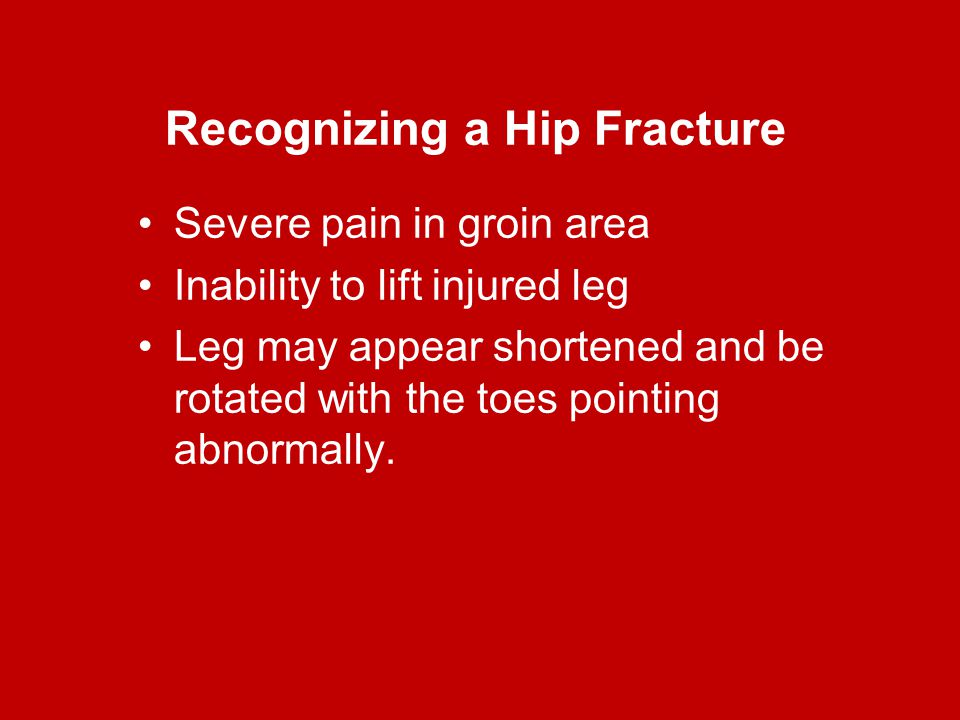 Recognizing a Hip Fracture Severe pain in groin area Inability to lift injured leg Leg may appear shortened and be rotated with the toes pointing abno