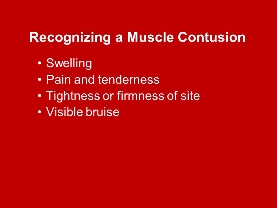 Recognizing a Muscle Contusion Swelling Pain and tenderness Tightness or firmness of site Visible bruise