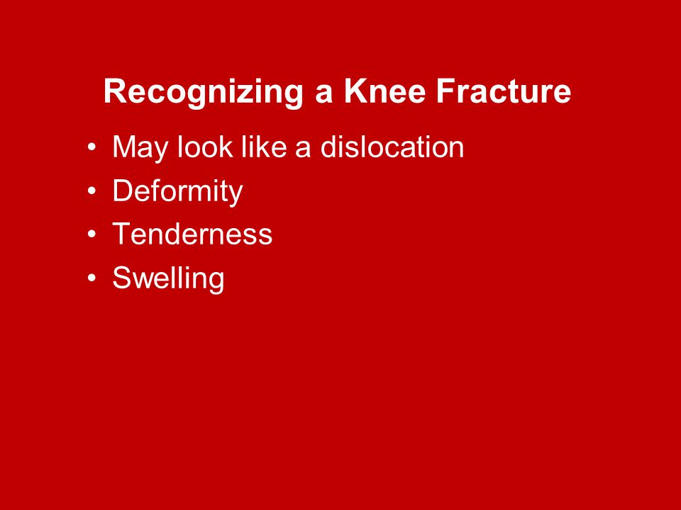 Recognizing a Knee Fracture May look like a dislocation Deformity Tenderness Swelling