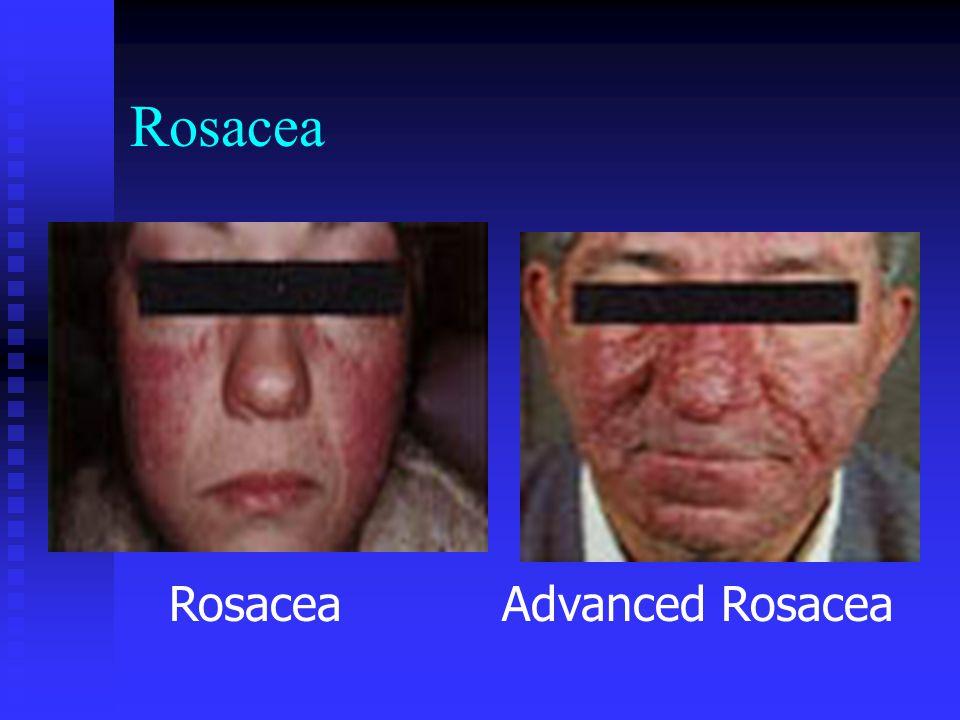 Rosacea Advanced Rosacea Rosacea