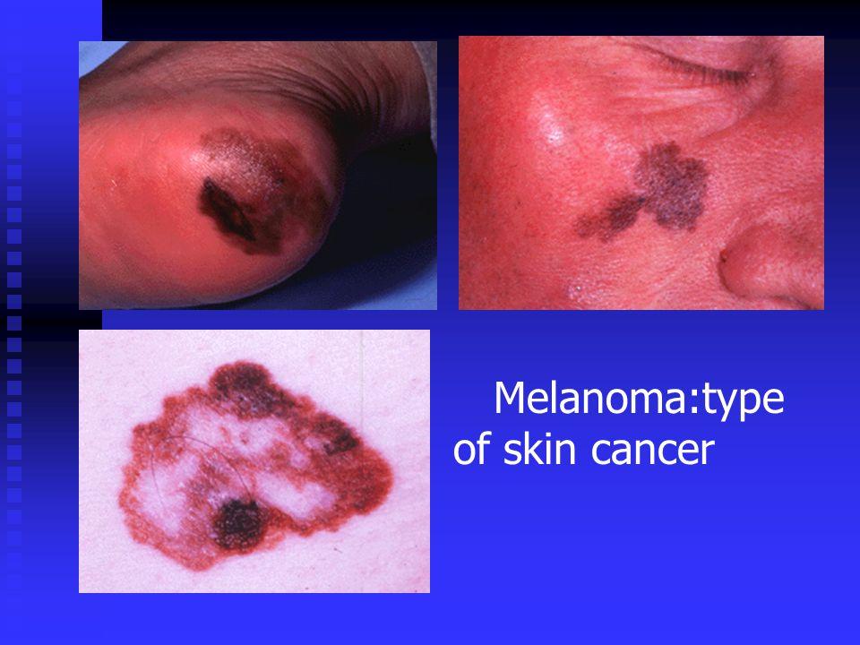 Melanoma:type of skin cancer