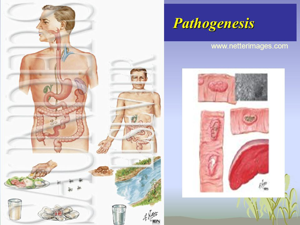 Pathogenesis www.netterimages.com