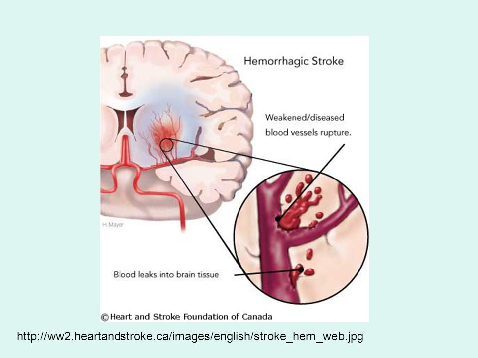 http://ww2.heartandstroke.ca/images/english/stroke_hem_web.jpg