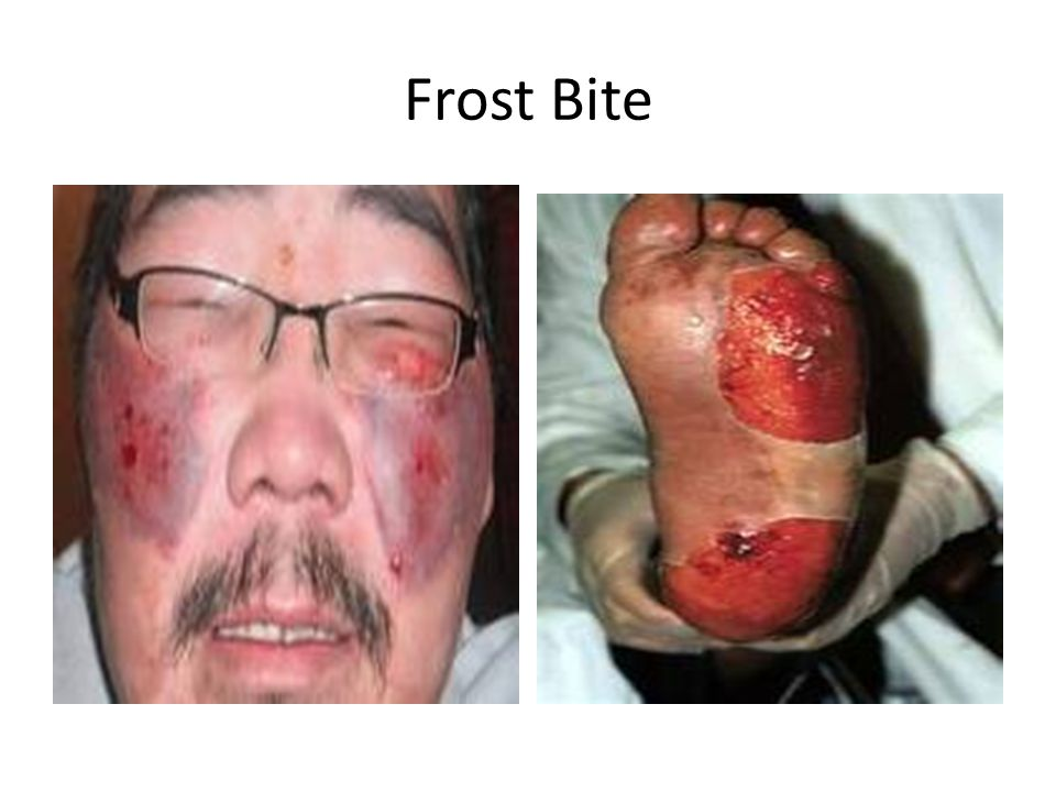 Frostbite Is a condition that results when body tissue becomes frozen