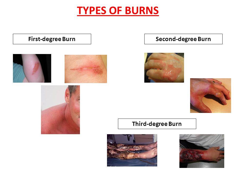 TYPES OF INJURIES AbrasionLaceration PunctureAvulsion
