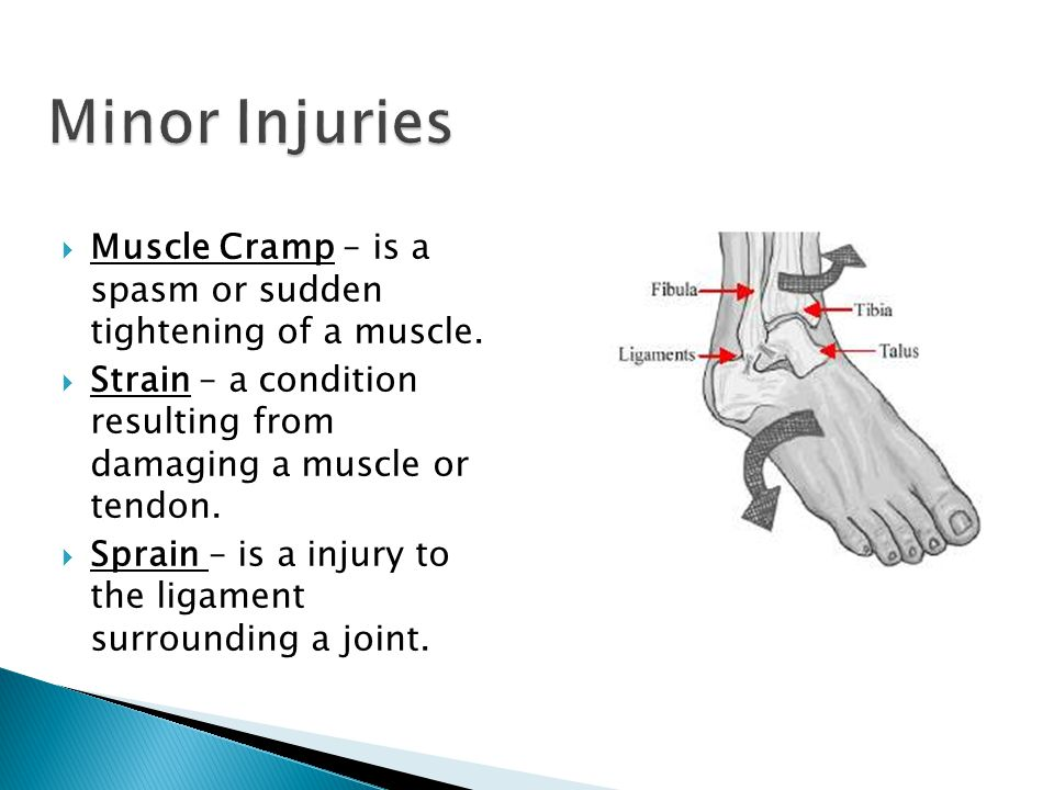  Muscle Cramp – is a spasm or sudden tightening of a muscle.
