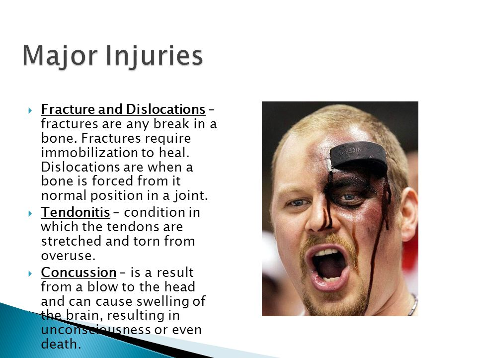  Fracture and Dislocations – fractures are any break in a bone.