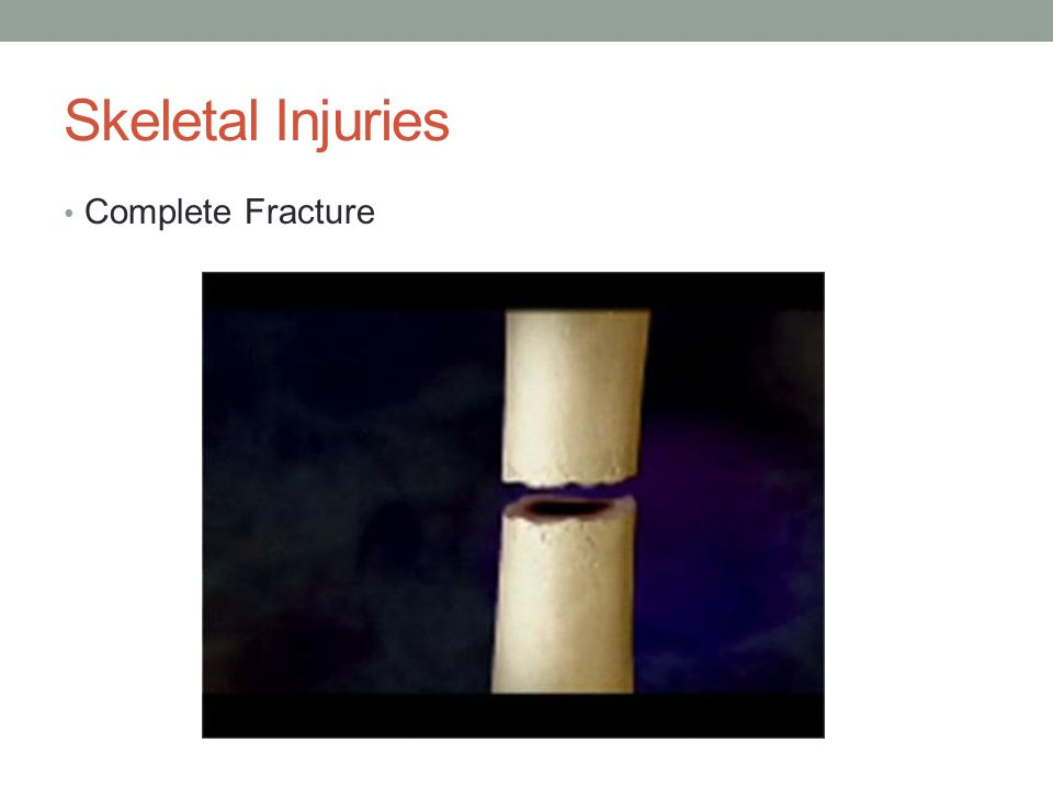Skeletal Injuries Complete Fracture