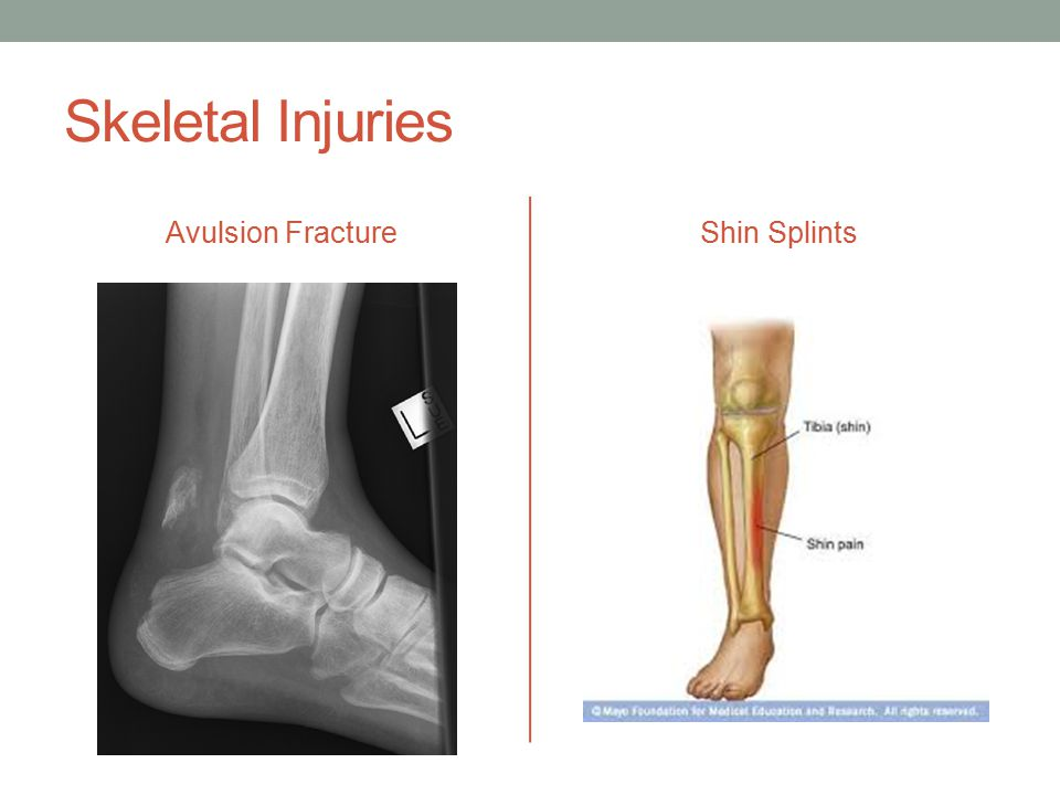 Skeletal Injuries Avulsion FractureShin Splints
