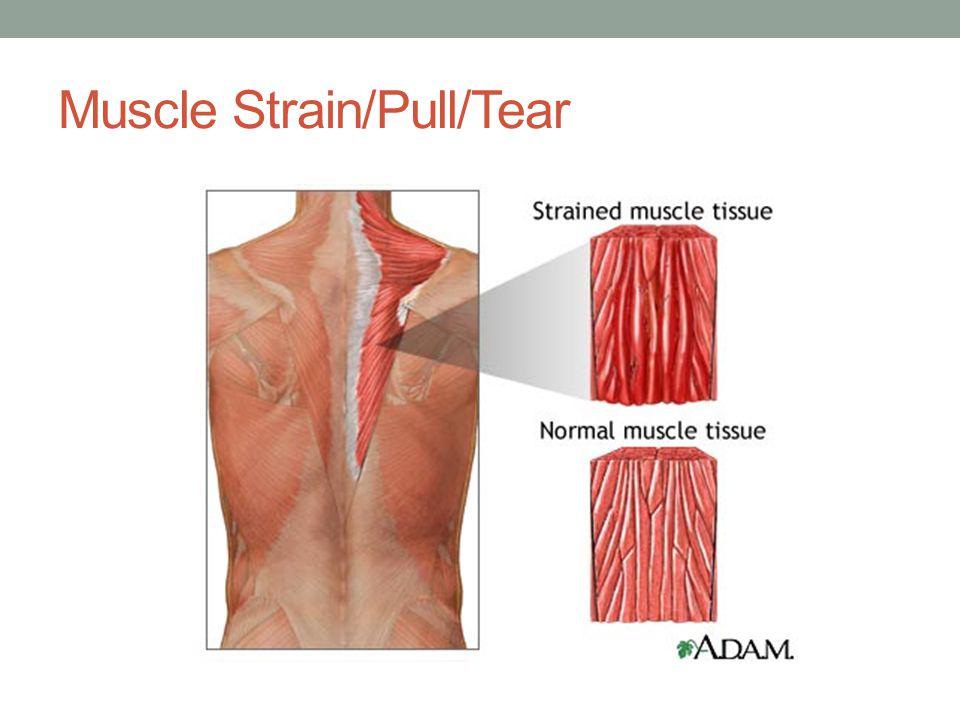 Muscle Avulsion