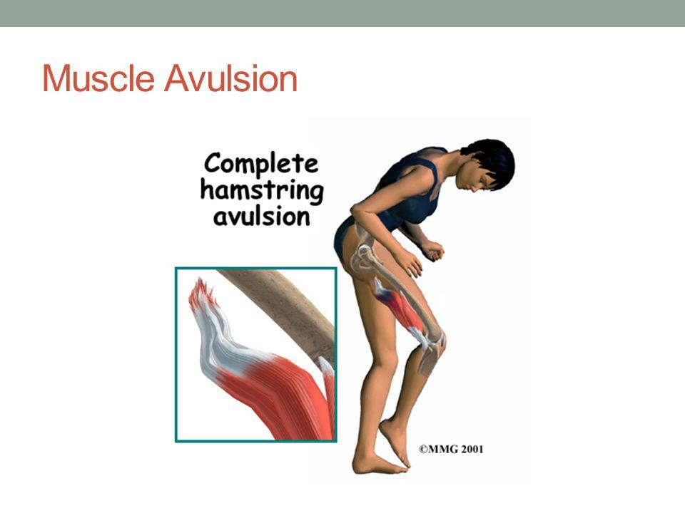 Skeletal Injuries Complete Fracture