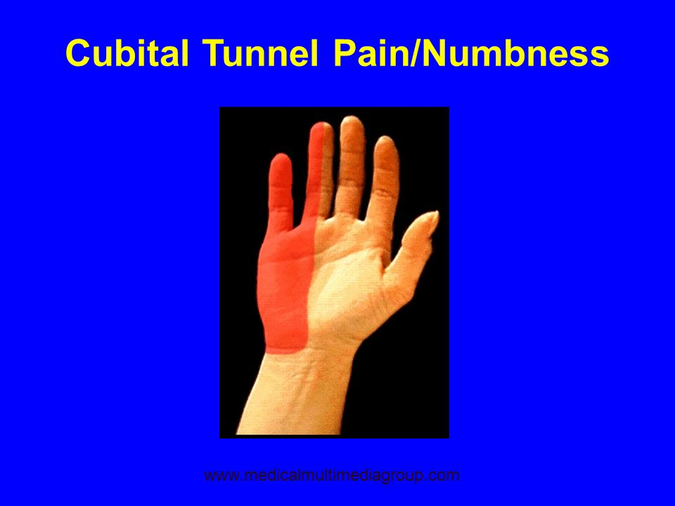 Cubital Tunnel Pain/Numbness www.medicalmultimediagroup.com