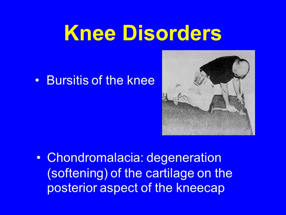 Knee Disorders Chondromalacia: degeneration (softening) of the cartilage on the posterior aspect of the kneecap Bursitis of the knee