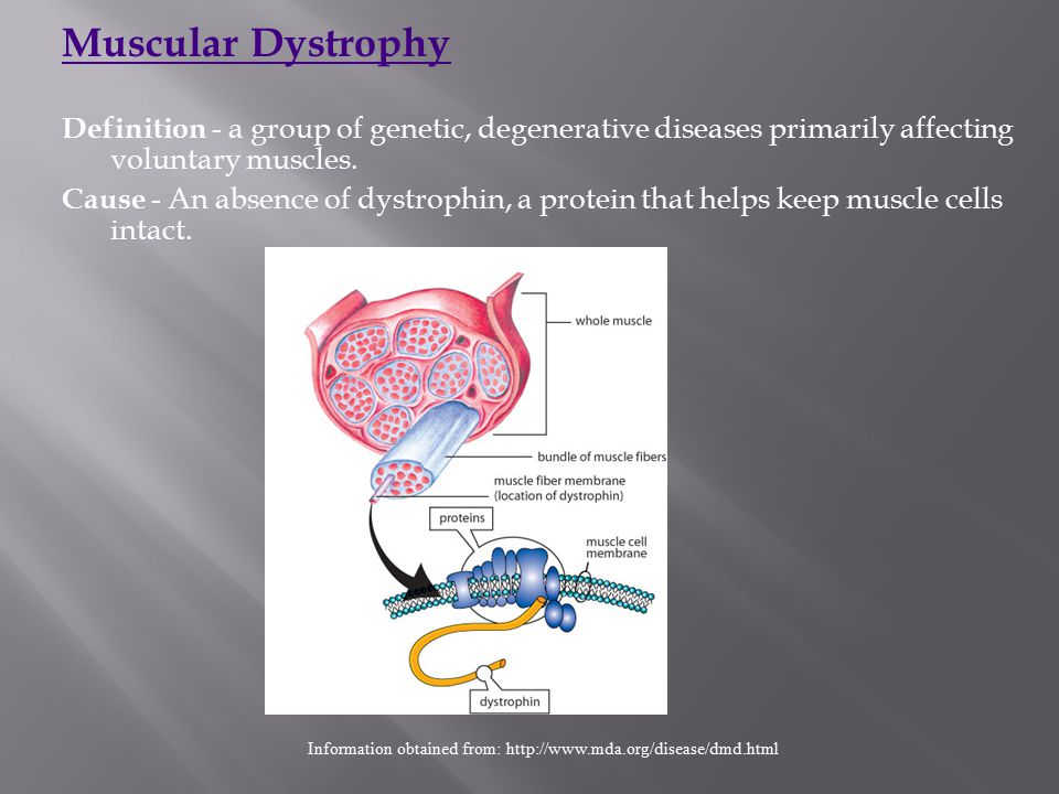 Muscular Dystrophy Definition - a group of genetic, degenerative diseases primarily affecting voluntary muscles. Cause - An absence of dystrophin, a p