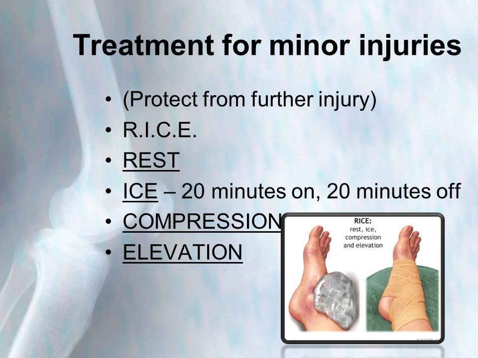 Treatment for minor injuries (Protect from further injury) R.I.C.E.