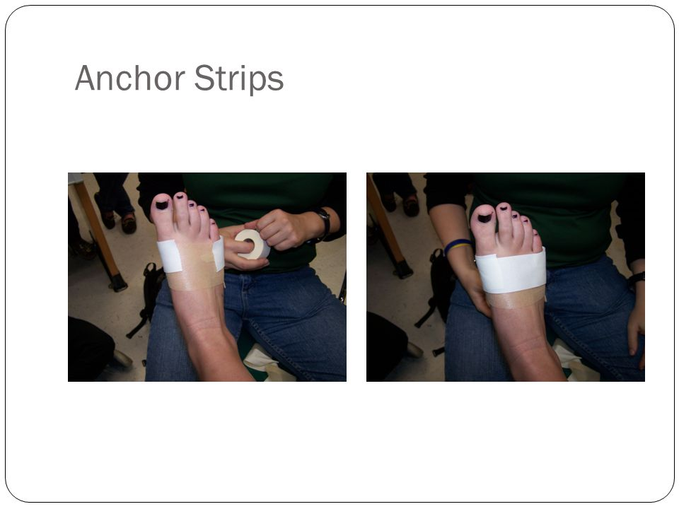 Anchor Strips