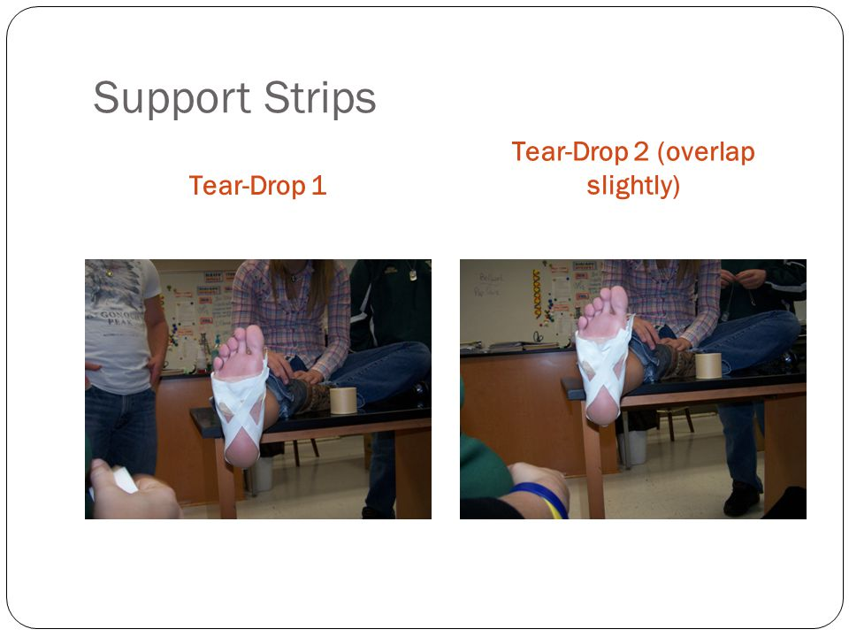 Support Strips Tear-Drop 1 Tear-Drop 2 (overlap slightly)