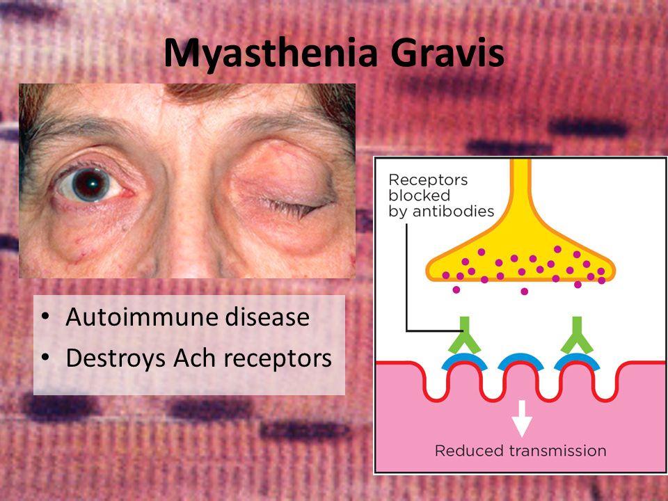 Myasthenia Gravis Autoimmune disease Destroys Ach receptors