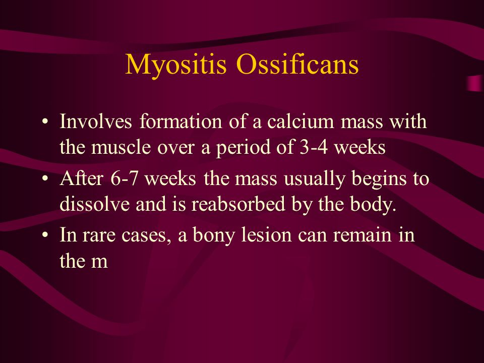 Myositis Ossificans Involves formation of a calcium mass with the muscle over a period of 3-4 weeks After 6-7 weeks the mass usually begins to dissolv