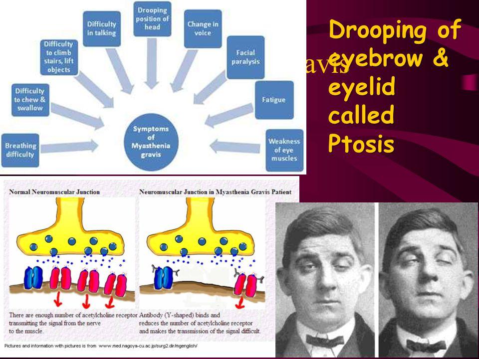 Myasthenia Gravis Drooping of eyebrow & eyelid called Ptosis