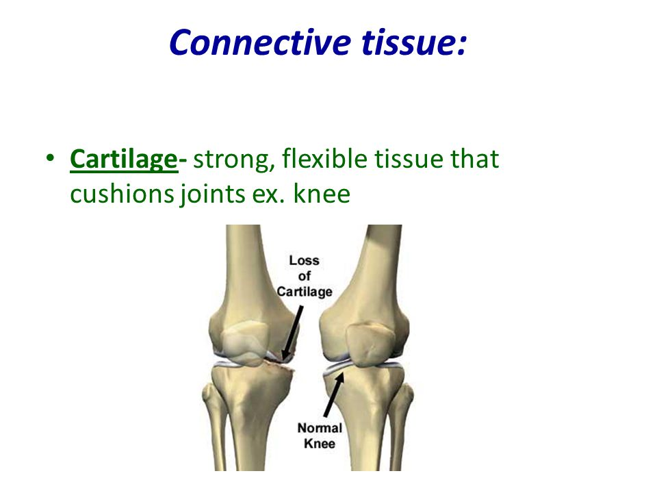 Connective tissue: Cartilage- strong, flexible tissue that cushions joints ex. knee