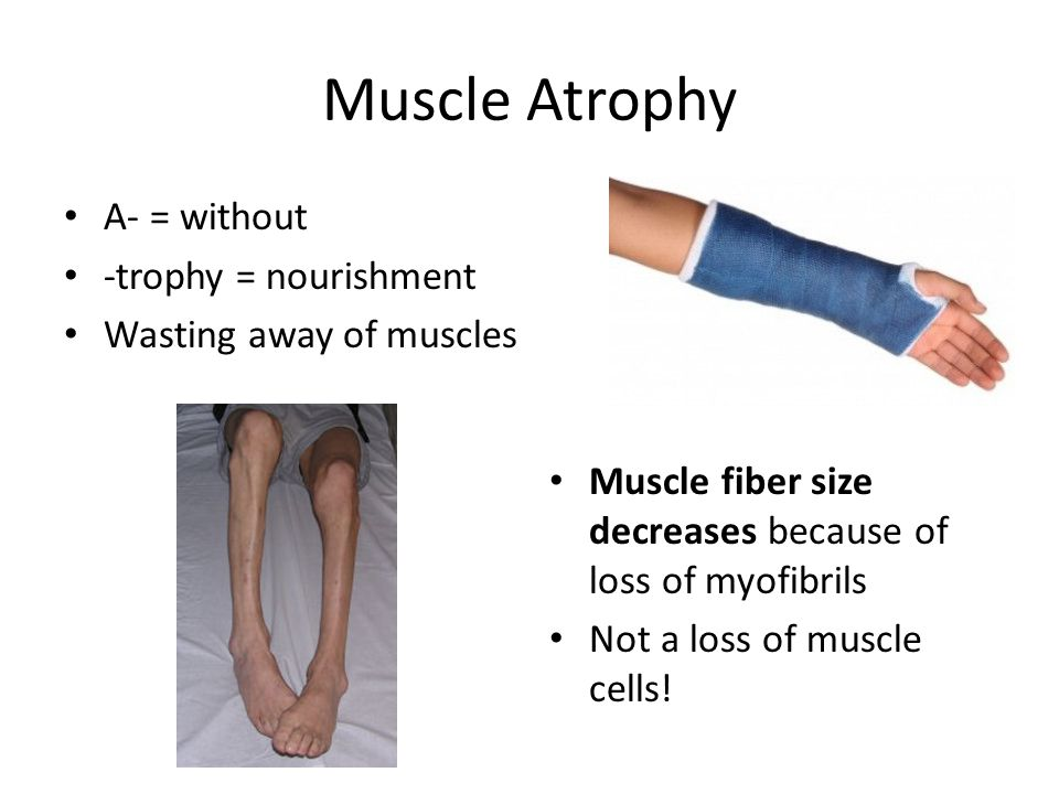 Muscle Atrophy Occurs because muscle is not used (stimulated) Begins as soon as muscle is immobilized Muscle strength can decrease at a rate of 5% per day.
