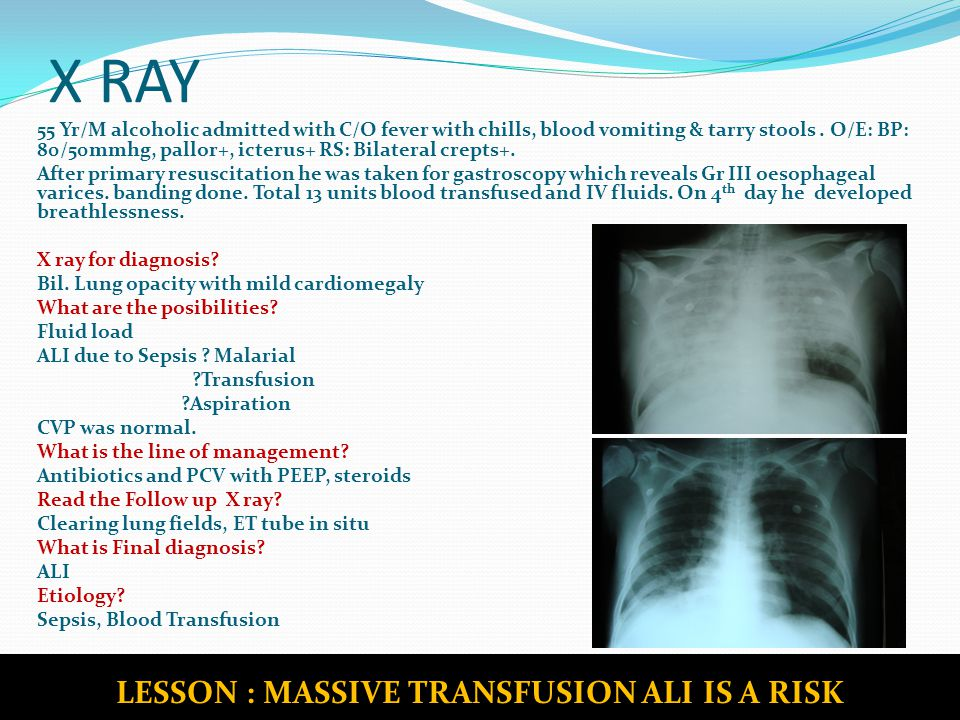 X RAY 33 Yr/M admitted with C/O breathlessness, abdominal pain & Lt knee joint swelling O/E: Pallor+, RS: Decreased Air entry on left side X ray chest for diagnosis.