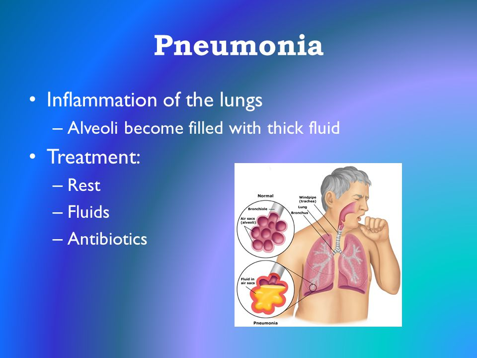 Pneumonia Inflammation of the lungs – Alveoli become filled with thick fluid Treatment: – Rest – Fluids – Antibiotics