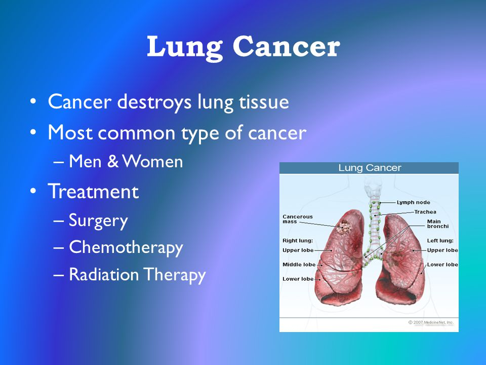 Lung Cancer Cancer destroys lung tissue Most common type of cancer – Men & Women Treatment – Surgery – Chemotherapy – Radiation Therapy