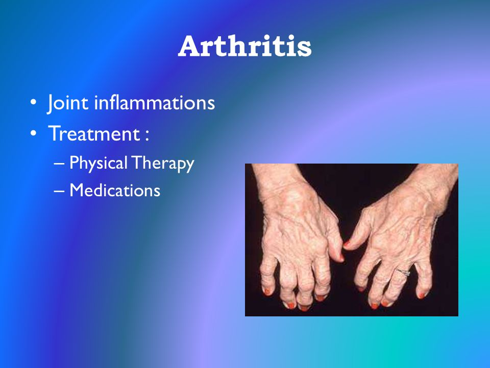Arthritis Joint inflammations Treatment : – Physical Therapy – Medications
