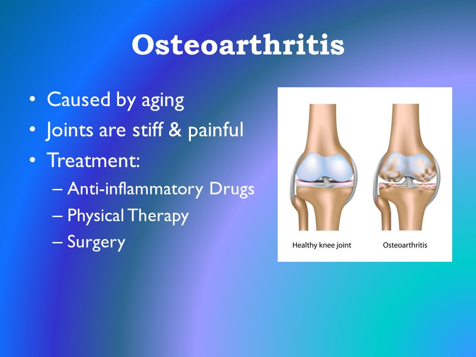 Osteoarthritis Caused by aging Joints are stiff & painful Treatment: – Anti-inflammatory Drugs – Physical Therapy – Surgery