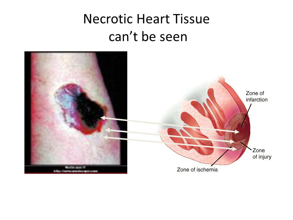 Necrotic Heart Tissue can't be seen