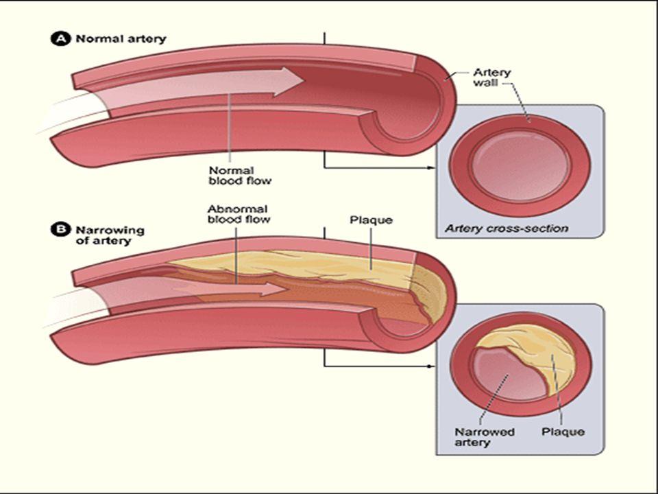 Coronary Artery Disease Blood vessel narrowed by atherosclerosis
