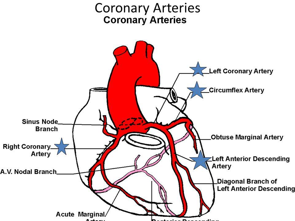 Percutaneous Coronary Intervention Balloon Angioplasty, Stent Placement