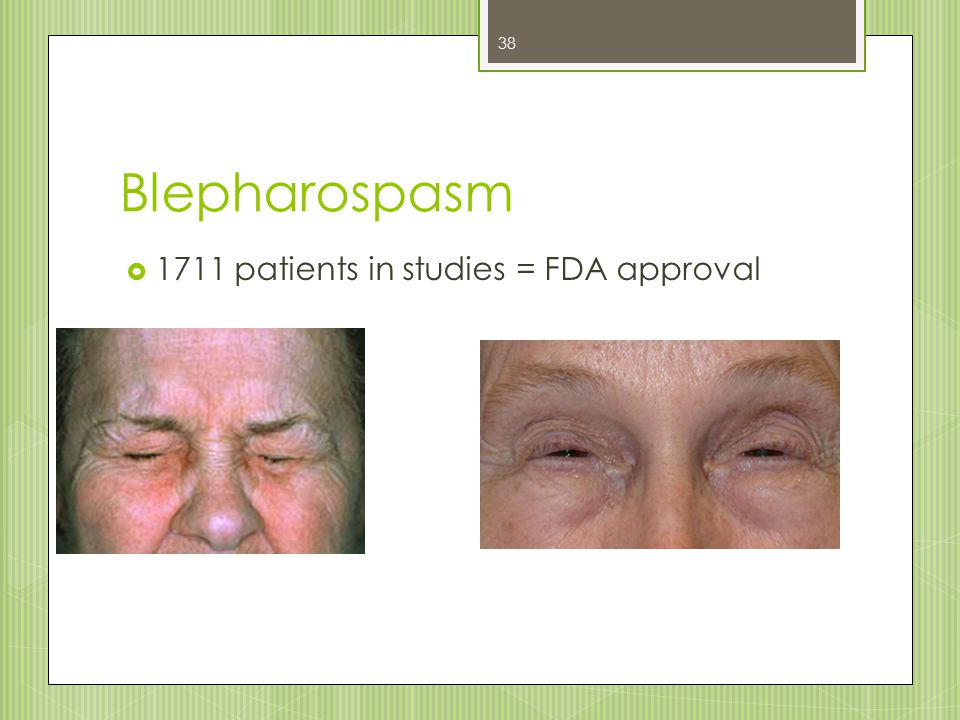 Blepharospasm  1711 patients in studies = FDA approval 38