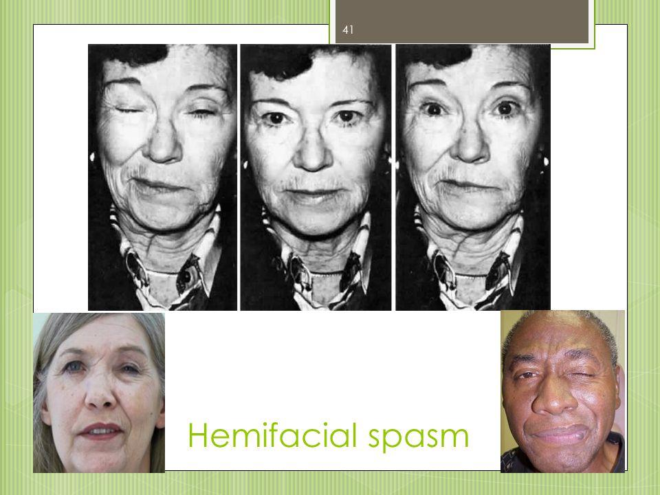 Hemifacial spasm 41
