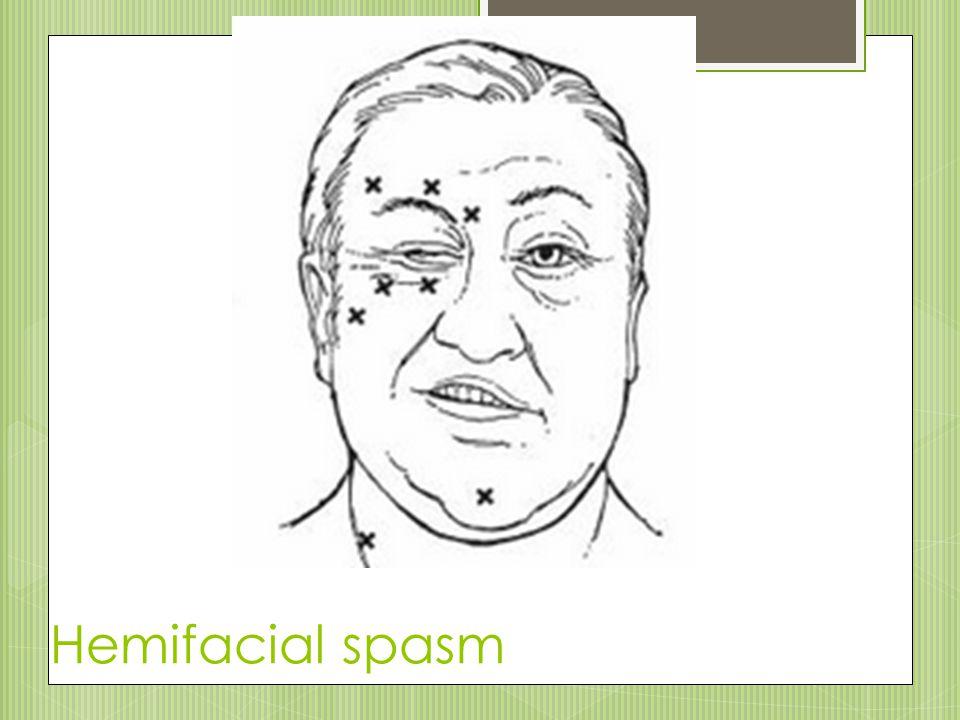 Hemifacial spasm 42