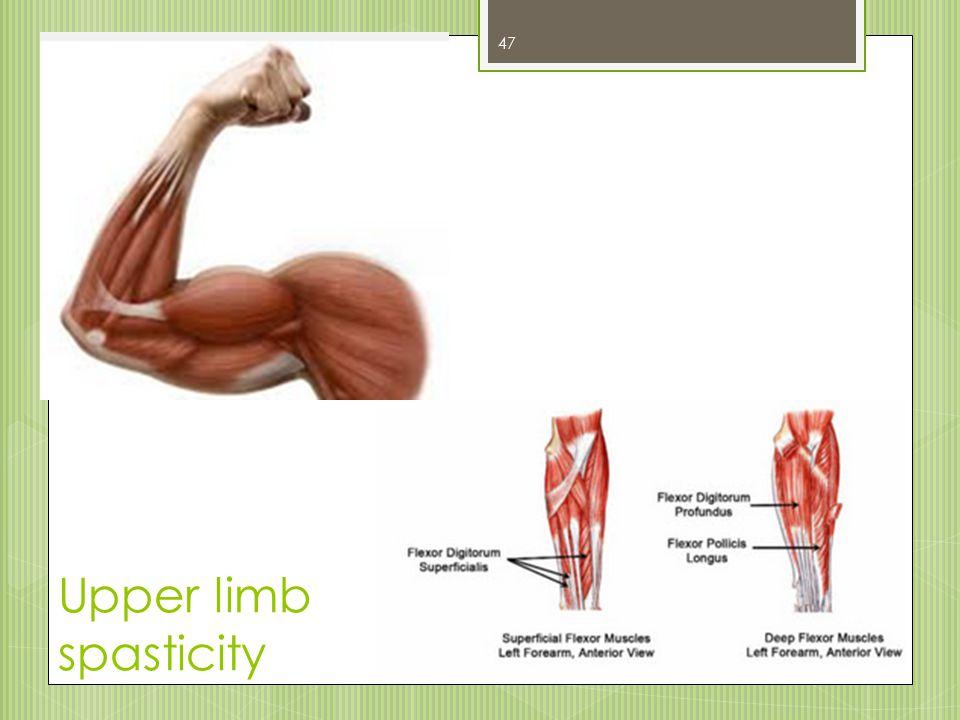 Upper limb spasticity 47