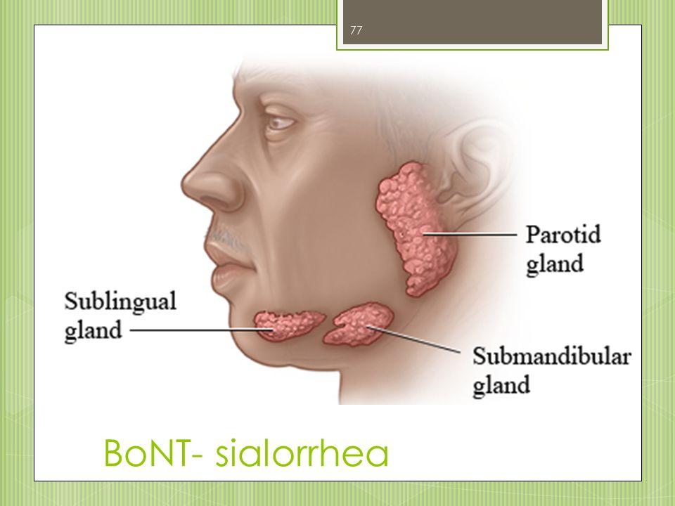 BoNT- sialorrhea 77