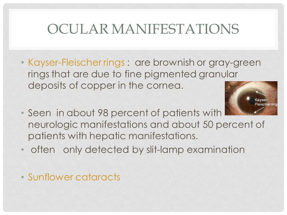 OCULAR MANIFESTATIONS Kayser-Fleischer rings : are brownish or gray-green rings that are due to fine pigmented granular deposits of copper in the cornea.