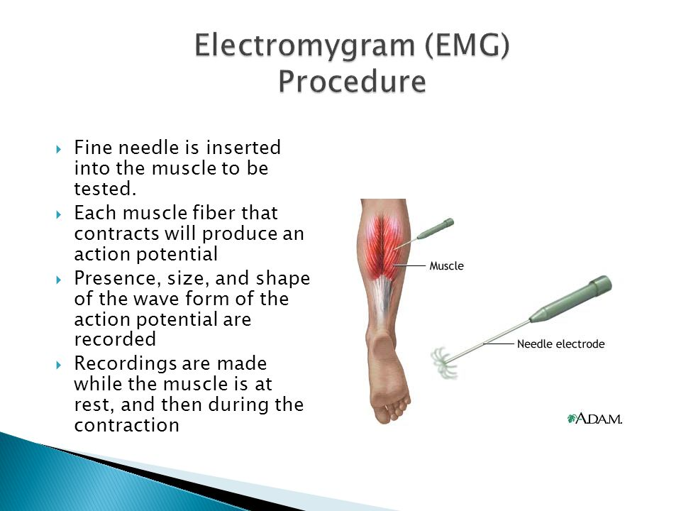  Fine needle is inserted into the muscle to be tested.  Each muscle fiber that contracts will produce an action potential  Presence, size, and shap