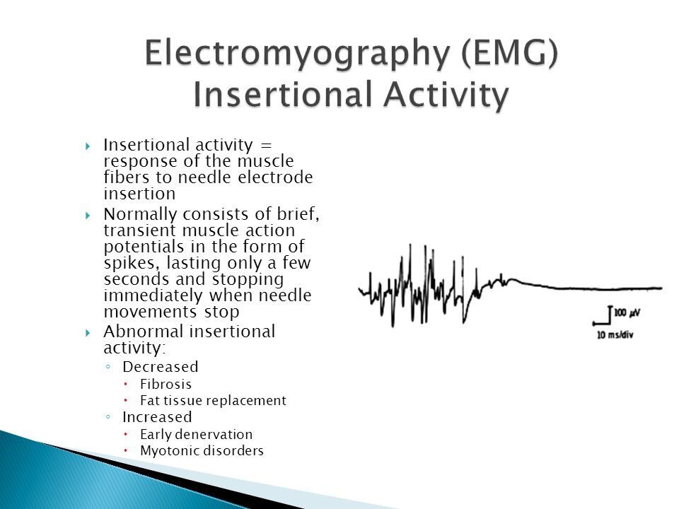  Persistence of any activity beyond insertion constitutes spontaneous activity  Could be due to the normal end-plate noise, or to the presence of fibrillations and positive waves, or other spontaneous activity  Normally, the monophasic potentials are of low amplitude and short duration and cause a thickened baseline appearance.