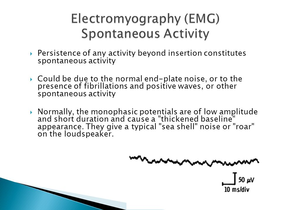  Persistence of any activity beyond insertion constitutes spontaneous activity  Could be due to the normal end-plate noise, or to the presence of fi