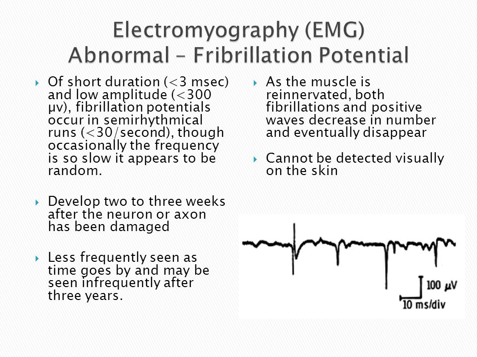M-wave represents the summated activity of all motor units (some motor units will be recruited later than others due to slower conduction times), therefore amplitude and shape of wave are important M-wave onset Stimulus Baseline
