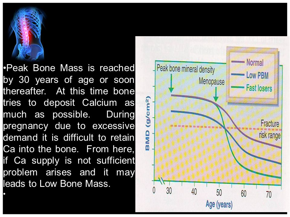 Peak Bone Mass is reached by 30 years of age or soon thereafter.
