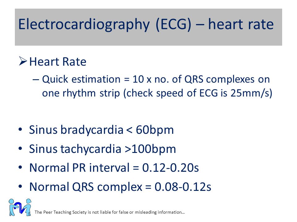 Electrocardiography (ECG) – heart rate The Peer Teaching Society is not liable for false or misleading information…  Heart Rate – Quick estimation =