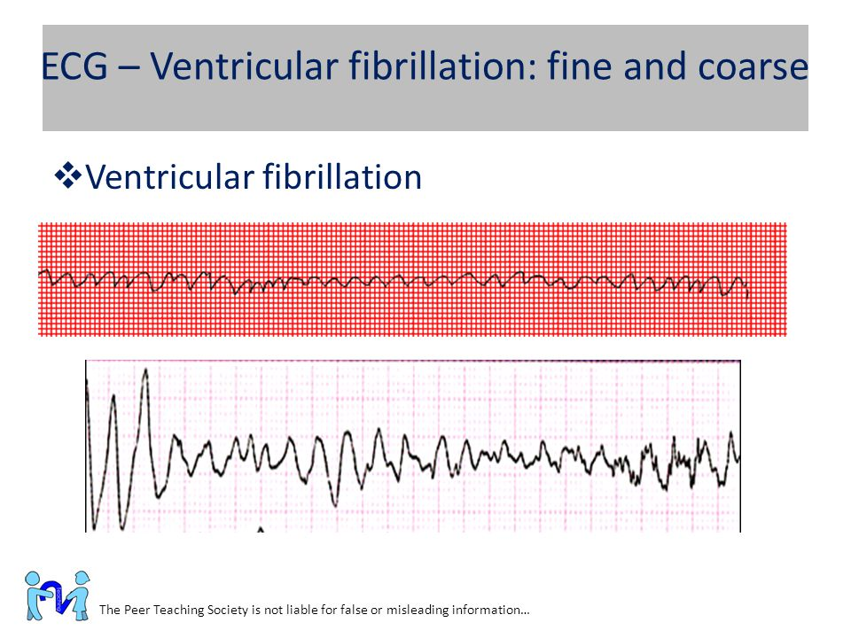 ECG – Ventricular fibrillation: fine and coarse The Peer Teaching Society is not liable for false or misleading information…  Ventricular fibrillatio
