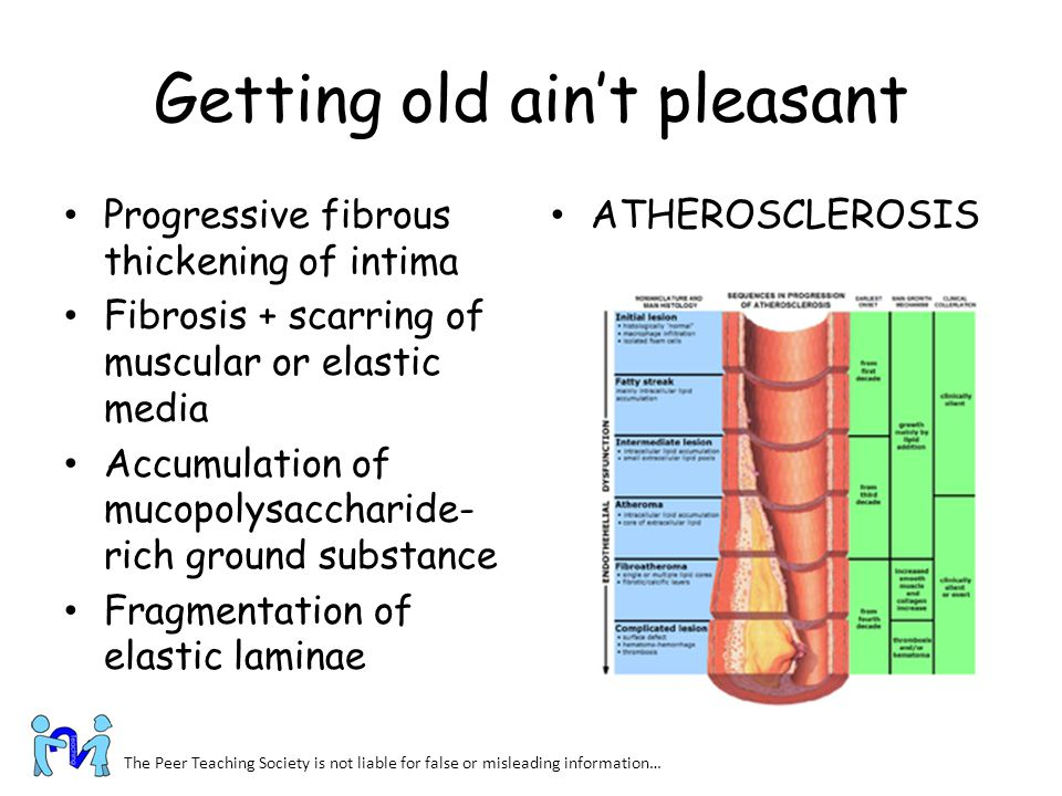 Getting old ain't pleasant Progressive fibrous thickening of intima Fibrosis + scarring of muscular or elastic media Accumulation of mucopolysaccharid